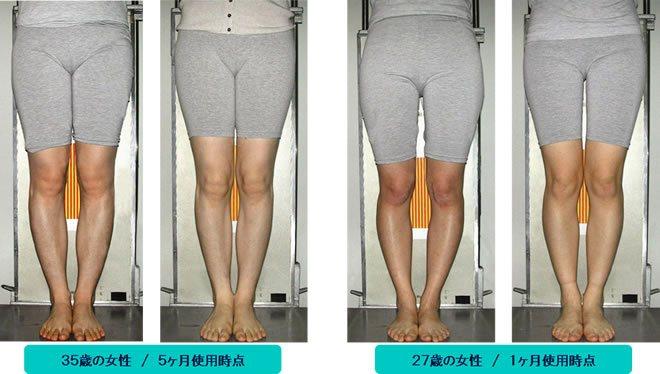 O脚の改善例